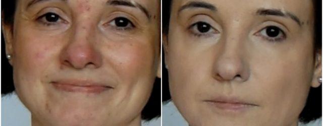 machaj pt tenul acneic